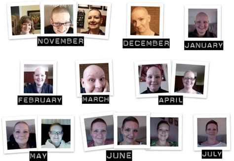 hair growth timelines after chemo chemo and hair loss timeline hairstylegalleries com