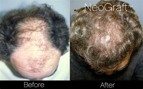 new hair replacement technology 2014 new hair transplant techniques 2013