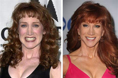 kathy griffin plastic surgery before and after pics