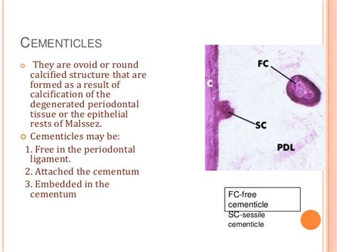Cementicles definition of marriage