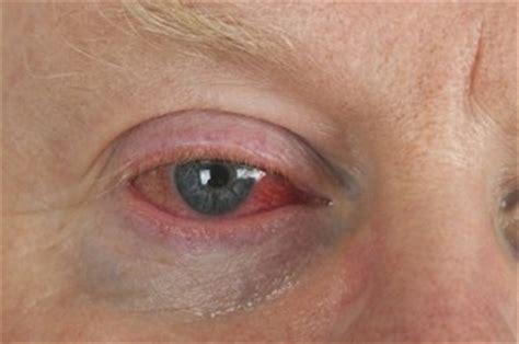 red eyes / bloodshot eyes — causes and treatment