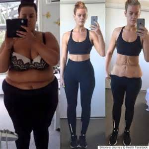 woman left with excess skin after extreme weight loss hits