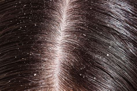Can Hair Dryer Cause Dandruff dermatology hair care 5 ways to deal with dandruff