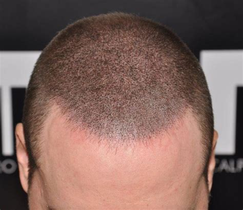 keeping your hair longer after scalp micropigmentation