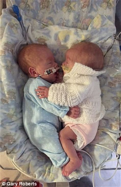 twins born at 25 weeks cuddle helps twins born 13 weeks prematurely survive