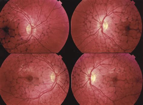 pattern dystrophy reticular case of sj 246 gren reticular dystrophy ophthalmology jama