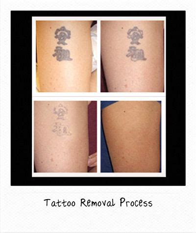 tattoo removal process pictures 65 best images about removal before and after on