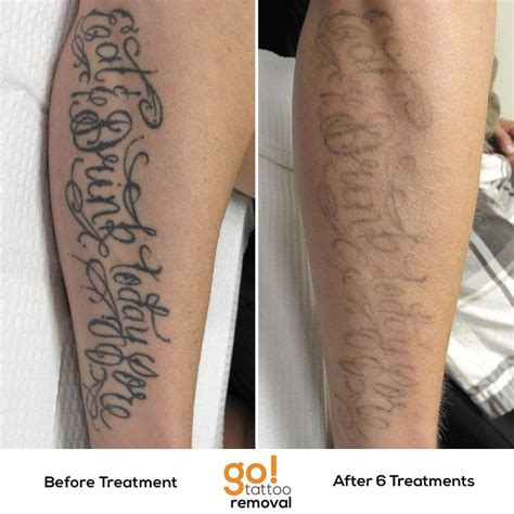 laser tattoo removal progress 6 laser removal treatments and we re already on the