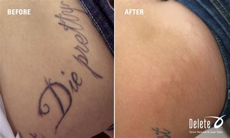 laser tattoo removal how many sessions how many sessions will it take to remove my
