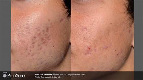 laser treatment for acne scars laser aesthetic center