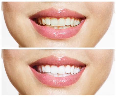 advanced laser teeth whitening gold coast miami