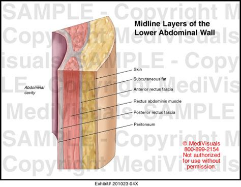 layers of abdomen in c section midline layers of the lower abdominal wall medical exhibit