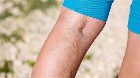 innere thrombose 10 varicose vein myths everyday health