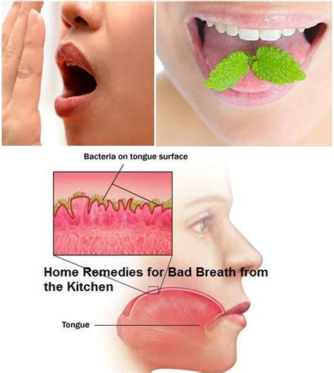 has bad breath ways you can eliminate bad breath alldaychic