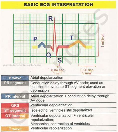 ecg pattern meaning 64 best images about cardiovascular on pinterest signs