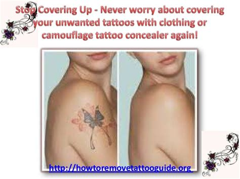 best tattoo removal machines reviews price range