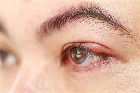 orzaiolo interno palpebra inferiore orzaiolo sintomi cause rimedi e consigli casasuper