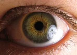 syphilis blindness ocular syphilis is a real std it causes blindness and it