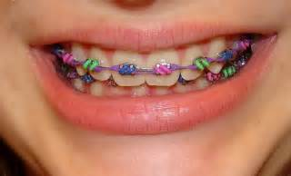 colorful braces choosing color of braces how teeth look white with color