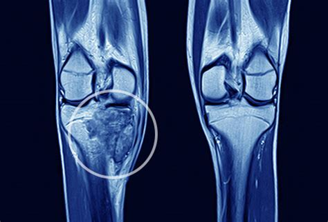 pictures: guide to bone cancer