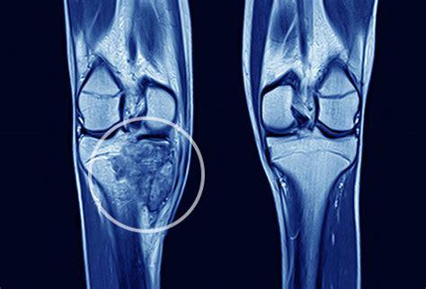 visual guide  bone cancer