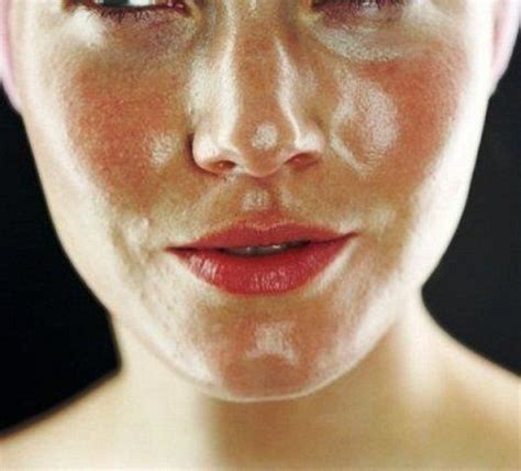 U And Your Skin by Do You Your Skin Type Let S Talk And Wellness