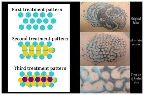 non laser tattoo removal uk non laser removal tatt2away