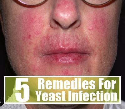 yeast contamination remedy burns yeast infection tips