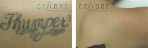 hd esthetique tattoo removal tattoo removal before and after hot girls wallpaper