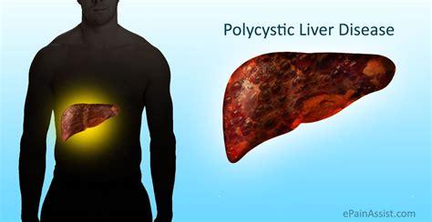 liver disease polycystic liver disease pld causes symptoms treatment