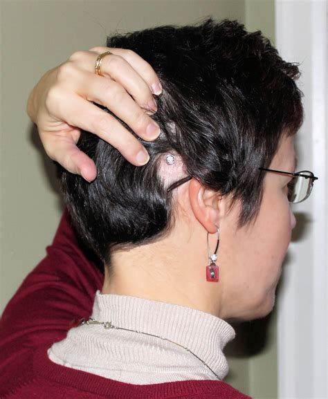 hairstyles to hide cochlear implants baha cochlear implant baha hearing aid tinnitus xtc