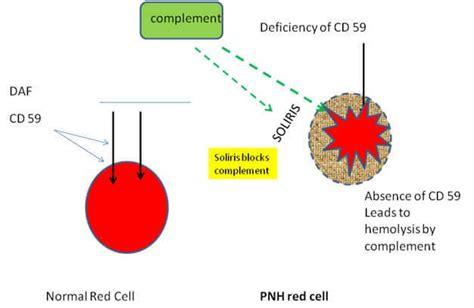 Pch Disease - hemoglobinuria paroxysmal paroxysmal cold hemoglobinuria paroxysmal nocturnal