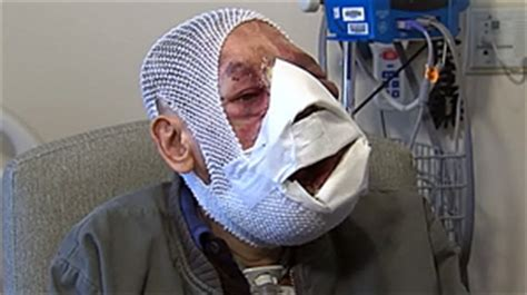jose man with no face after surgery man who lost his face to tumor gets lifesaving surgery