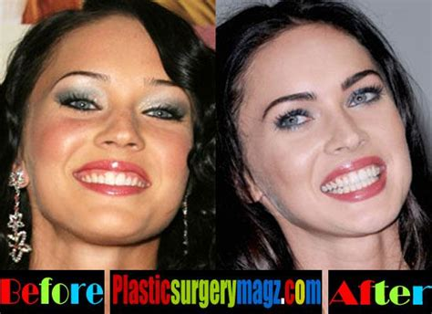 Next Facelift For Your Teeth 2 by 619 Best Images About Plastic Surgery On