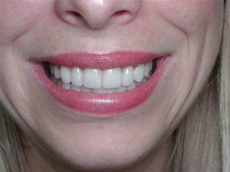 porcelain veneers  pittsburgh cosmetic dentistry