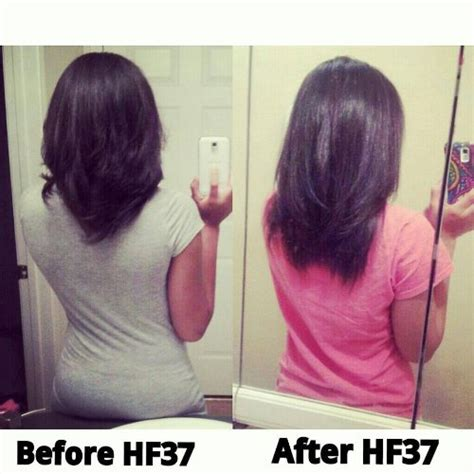 1 supplement for growth best supplement for hair regrowth 2013