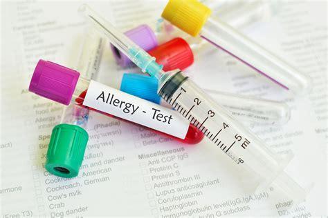 test per allergie allergie il test faber ne individua 244 grazie alle
