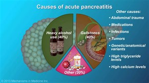 acute pancreatitis youtube