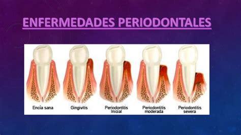 imagenes de enfermedades asombrosas enfermedades periodontales