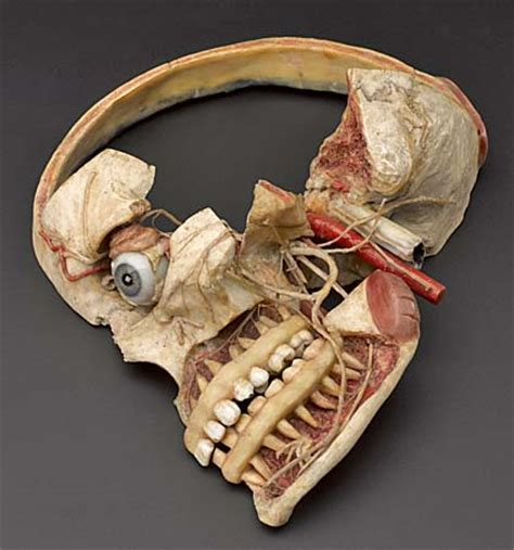 skull cross section museum of london welcomes doctors dissection and