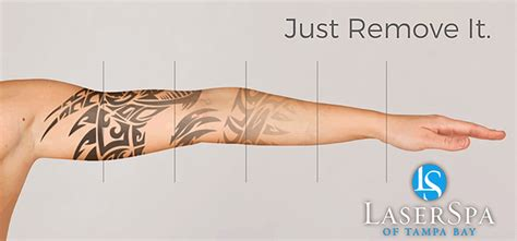tattoo laser removal near me laser removal palm harbor laserspa palm harbor