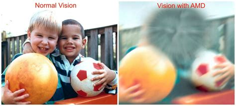 What Does Color Blindness Look Like by Macular Degeneration What You Need To Know