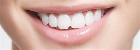 diy dental bonding chipped tooth repair at home www allaboutyouth net