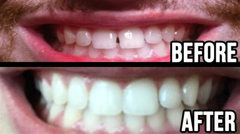 fixed my teeth gap without braces 45min work
