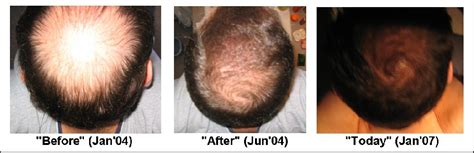 female pattern hair loss dutasteride image