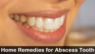 home remedies for abscess tooth how to treat infected gums