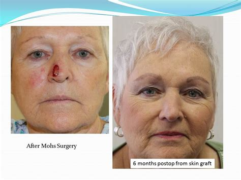 reconstruction after mohs surgery books mohs reconstruction