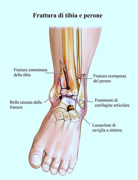 dolore lato interno ginocchio frattura malleolo della tibia interno esterno