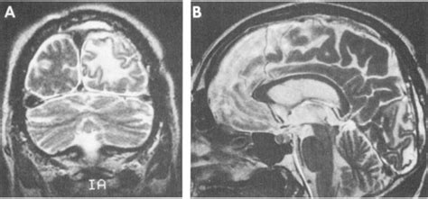 Mesial Temporal Sclerosis Pathology Outlines by Magnetic Resonance Imaging In Epilepsy Mayo Clinic Proceedings