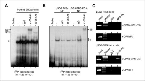erg expression pattern abnormal expression of the erg transcription factor in